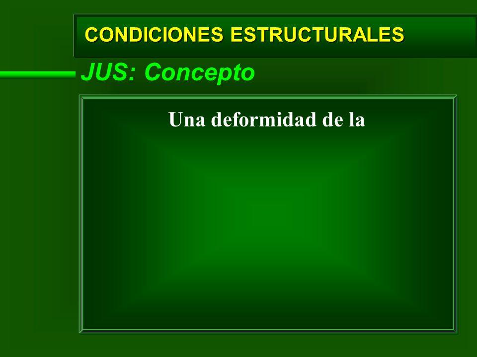 JUS: Concepto Una deformidad de la CONDICIONES ESTRUCTURALES