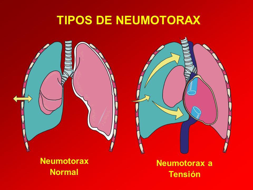 TIPOS DE NEUMOTORAX Neumotorax Normal Neumotorax a Tensión