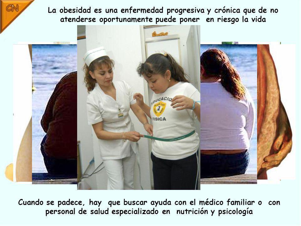 La obesidad es una enfermedad progresiva y crónica que de no atenderse oportunamente puede poner en riesgo la vida