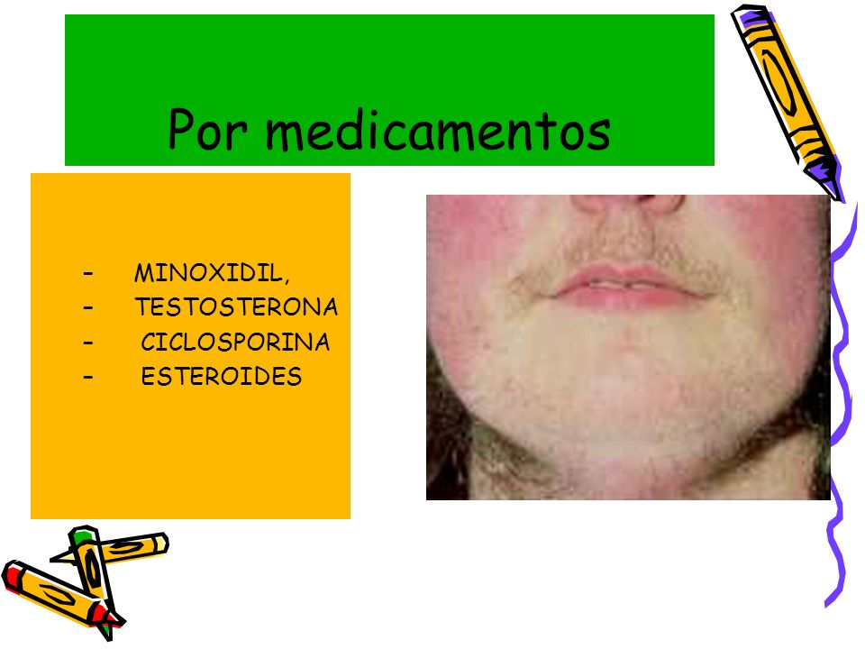 Por medicamentos MINOXIDIL, TESTOSTERONA CICLOSPORINA ESTEROIDES