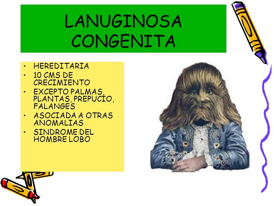 LANUGINOSA CONGENITA HEREDITARIA 10 CMS DE CRECIMIENTO