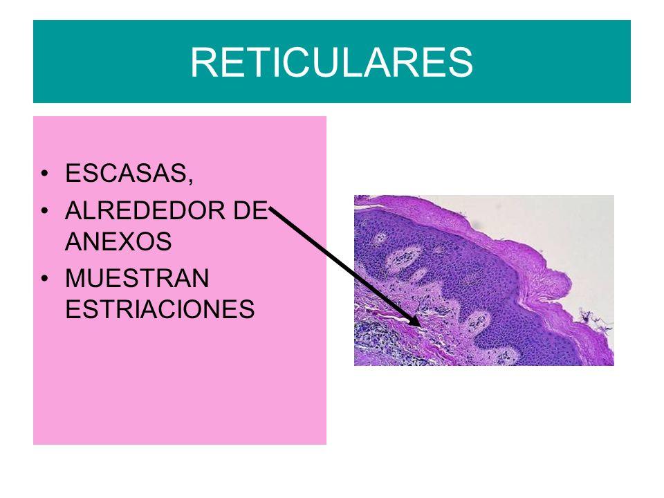 RETICULARES ESCASAS, ALREDEDOR DE ANEXOS MUESTRAN ESTRIACIONES