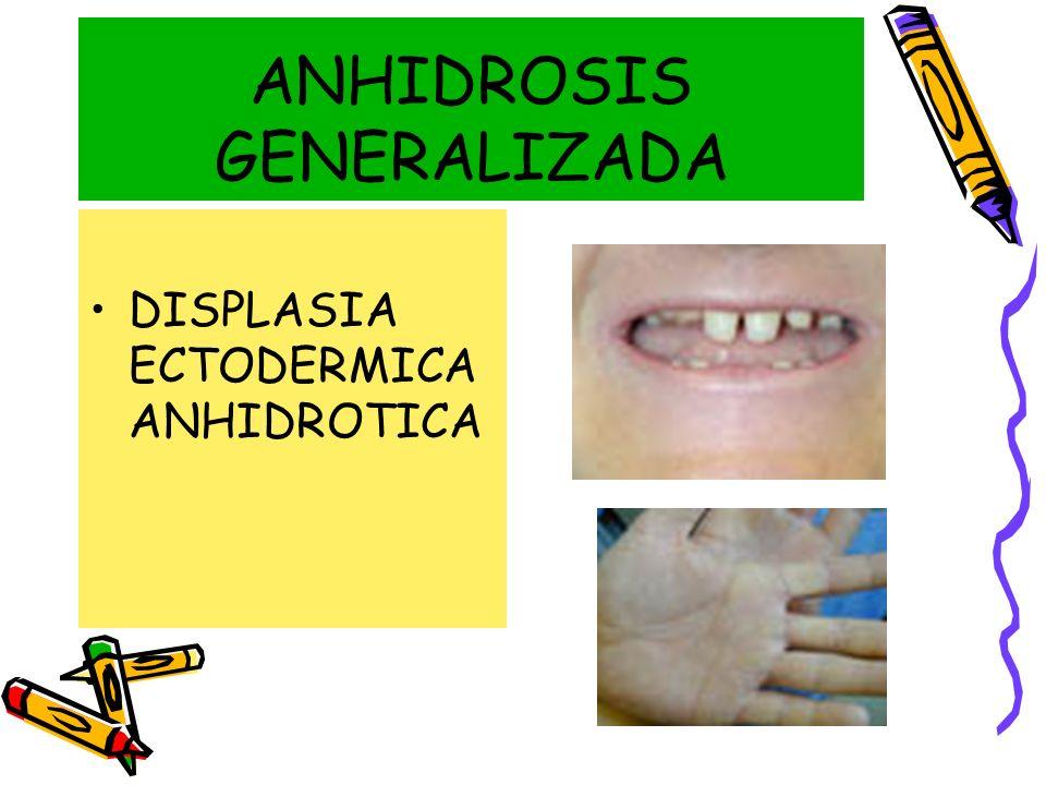 ANHIDROSIS GENERALIZADA