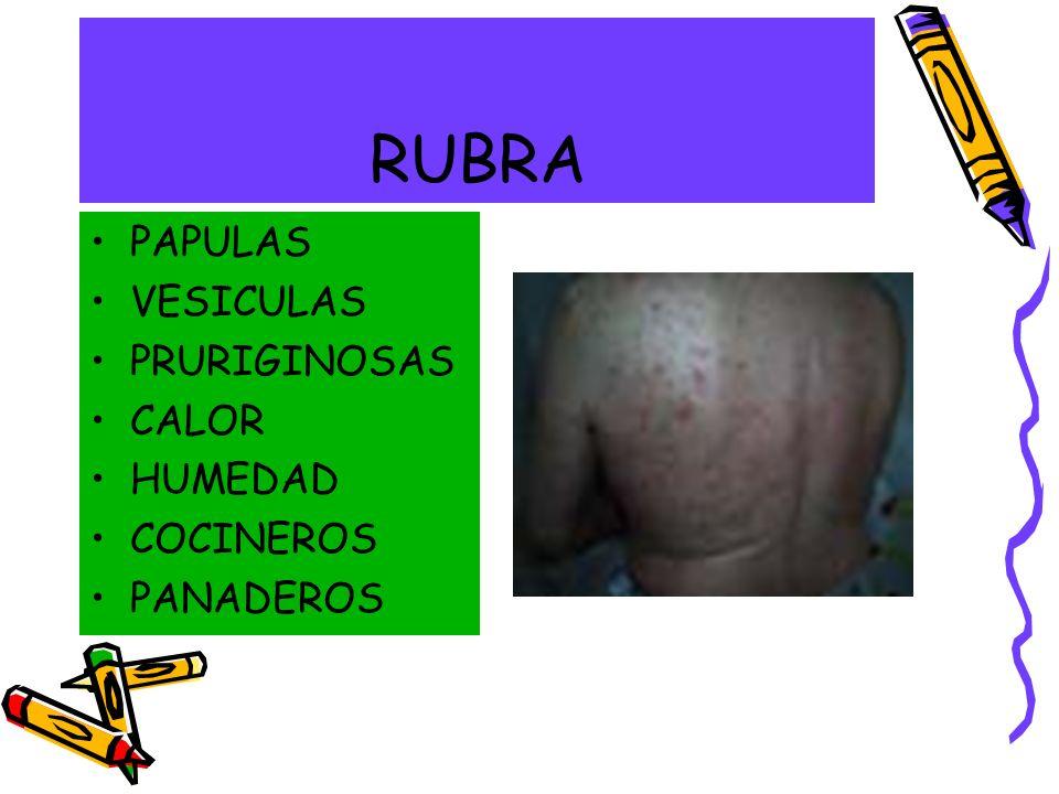 RUBRA PAPULAS VESICULAS PRURIGINOSAS CALOR HUMEDAD COCINEROS PANADEROS