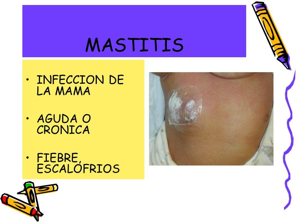MASTITIS INFECCION DE LA MAMA AGUDA O CRONICA FIEBRE, ESCALOFRIOS