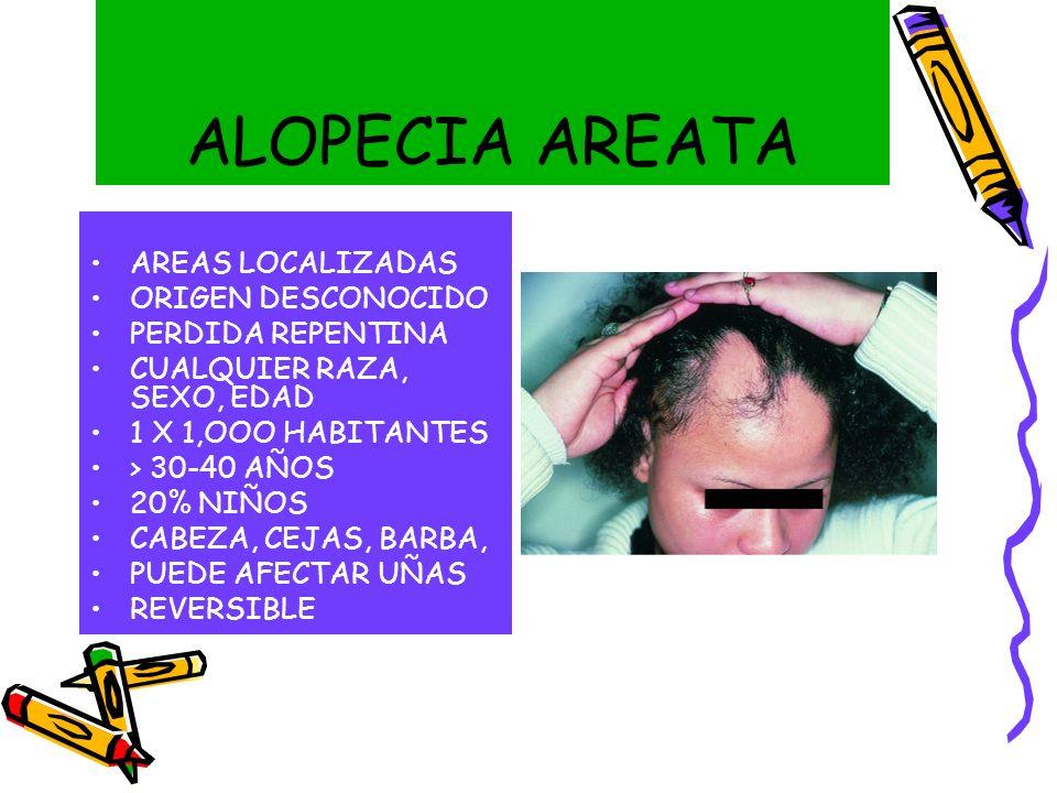 ALOPECIA AREATA AREAS LOCALIZADAS ORIGEN DESCONOCIDO PERDIDA REPENTINA