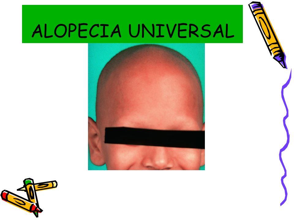 ALOPECIA UNIVERSAL