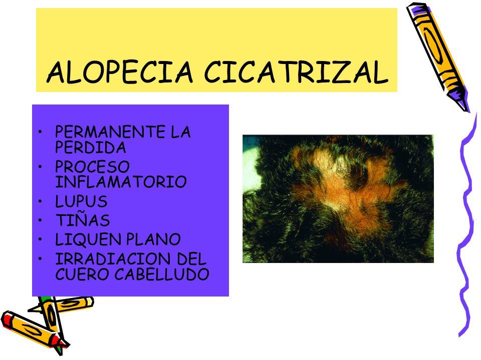 ALOPECIA CICATRIZAL PERMANENTE LA PERDIDA PROCESO INFLAMATORIO LUPUS