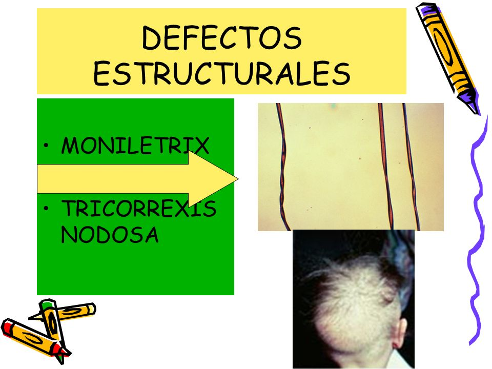 DEFECTOS ESTRUCTURALES