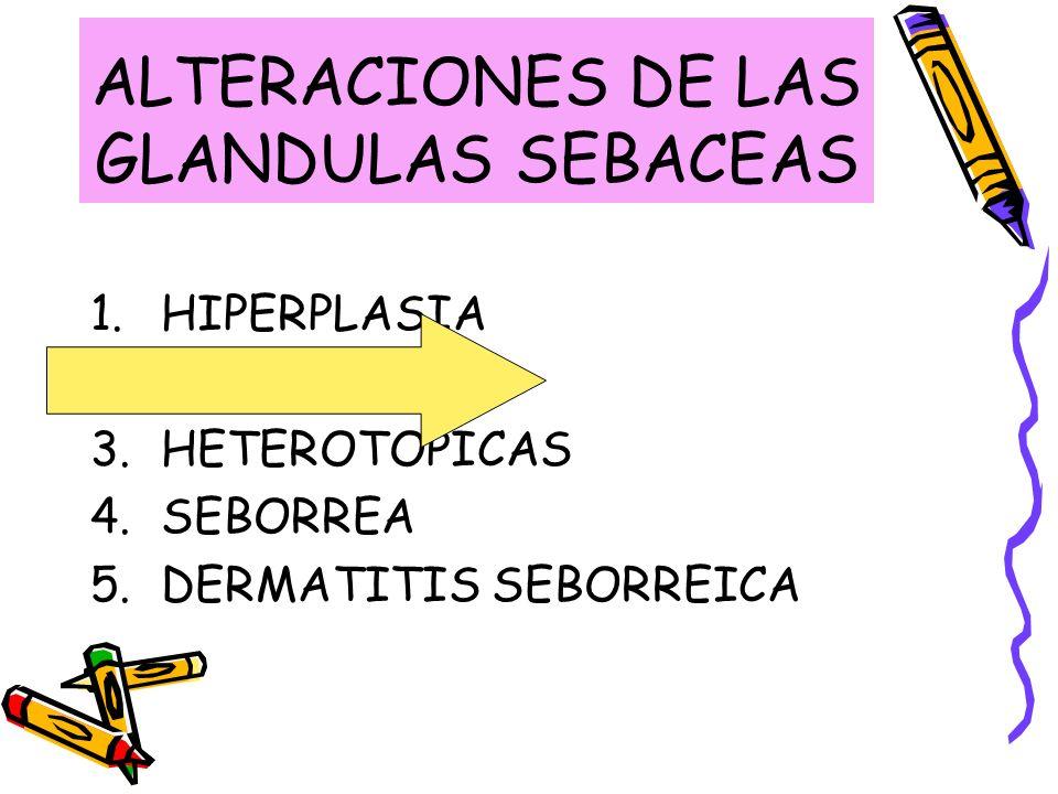 ALTERACIONES DE LAS GLANDULAS SEBACEAS