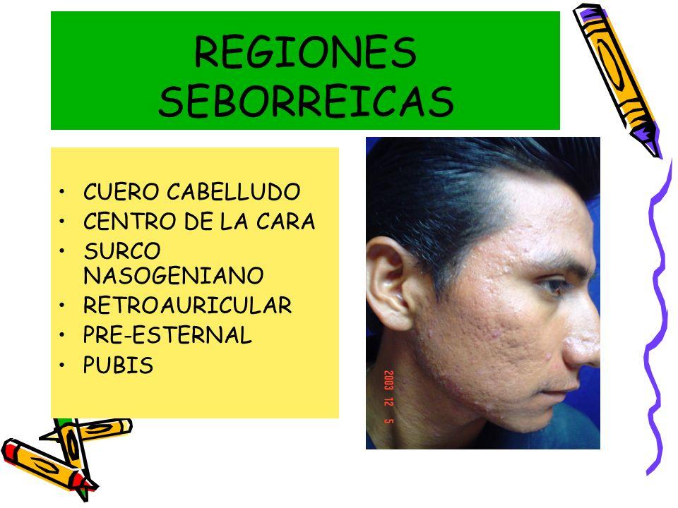 REGIONES SEBORREICAS CUERO CABELLUDO CENTRO DE LA CARA