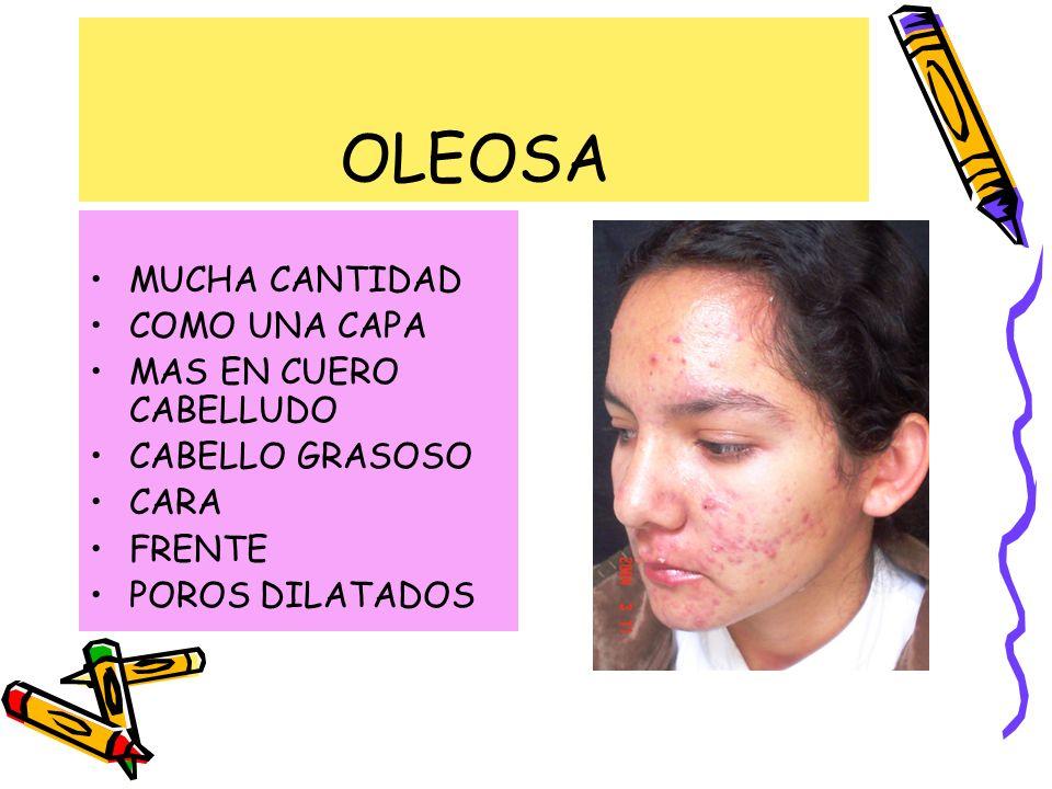 OLEOSA MUCHA CANTIDAD COMO UNA CAPA MAS EN CUERO CABELLUDO