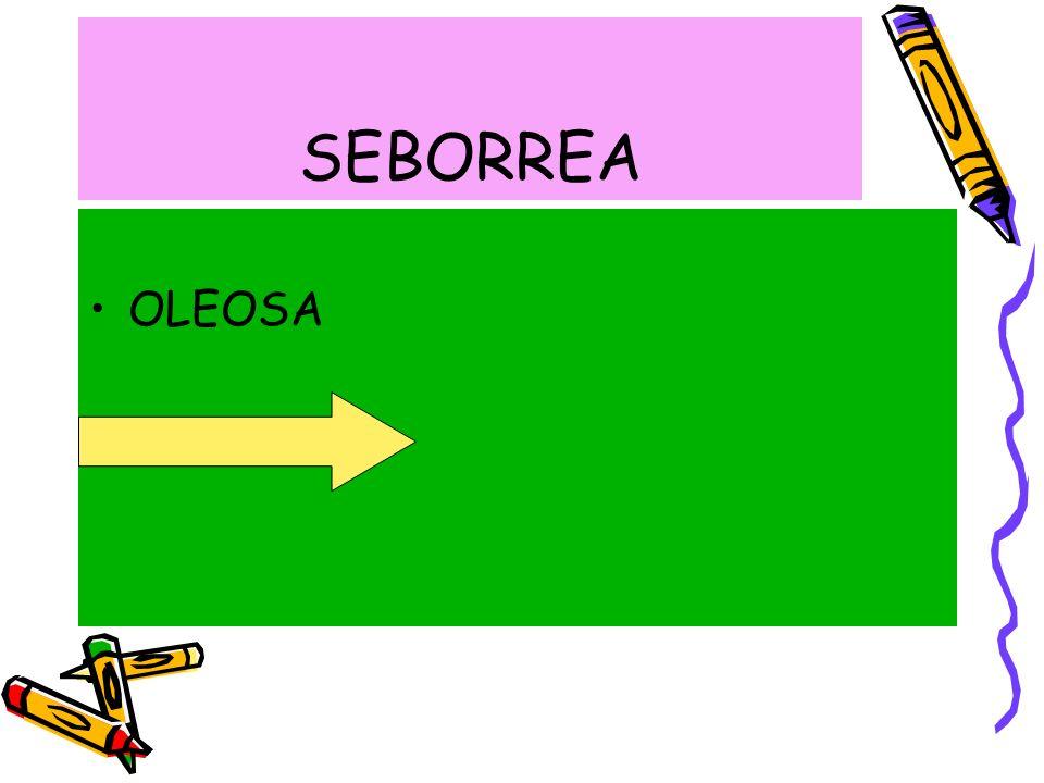 SEBORREA OLEOSA SECA