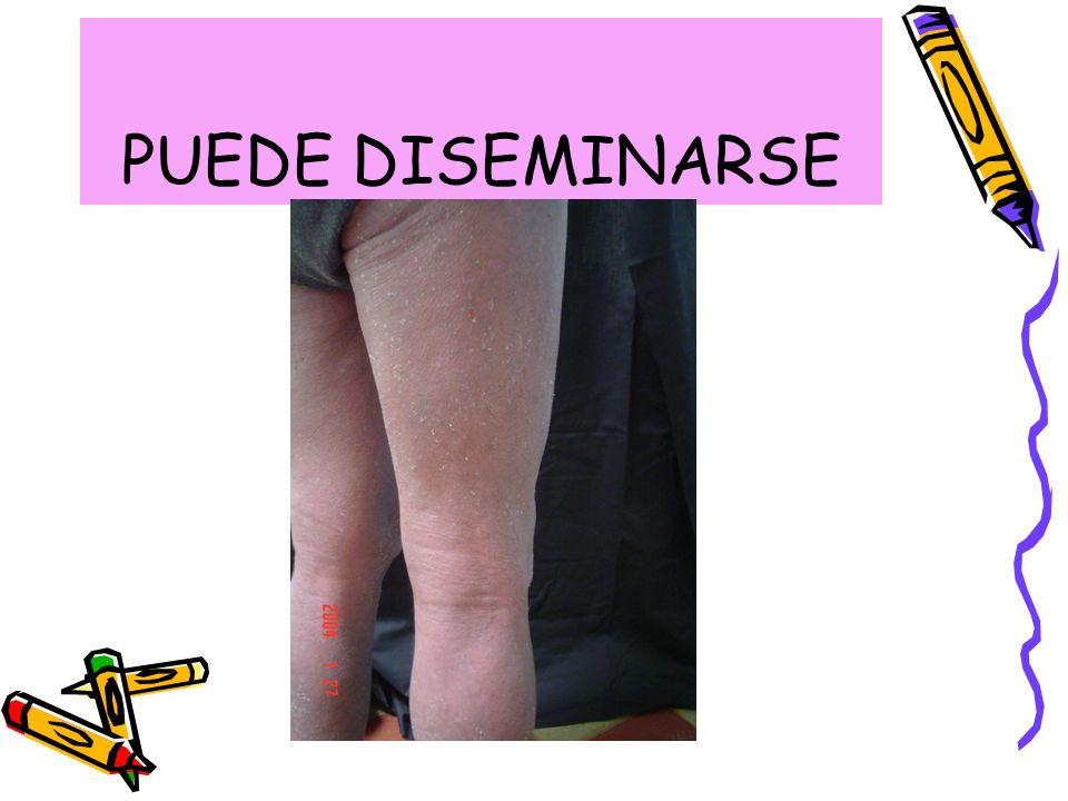 PUEDE DISEMINARSE