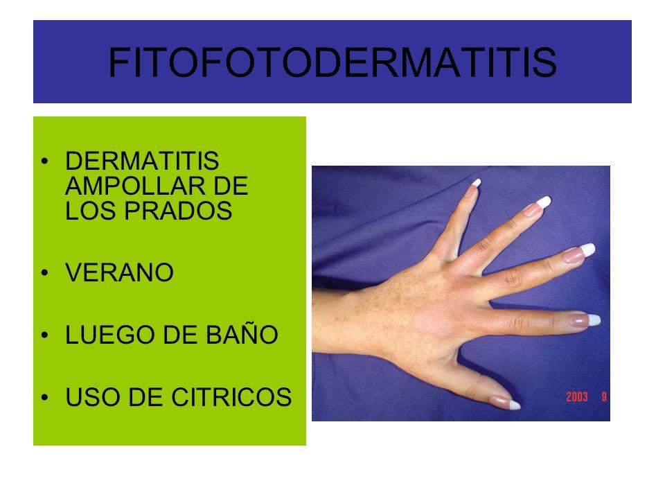 FITOFOTODERMATITIS DERMATITIS AMPOLLAR DE LOS PRADOS VERANO