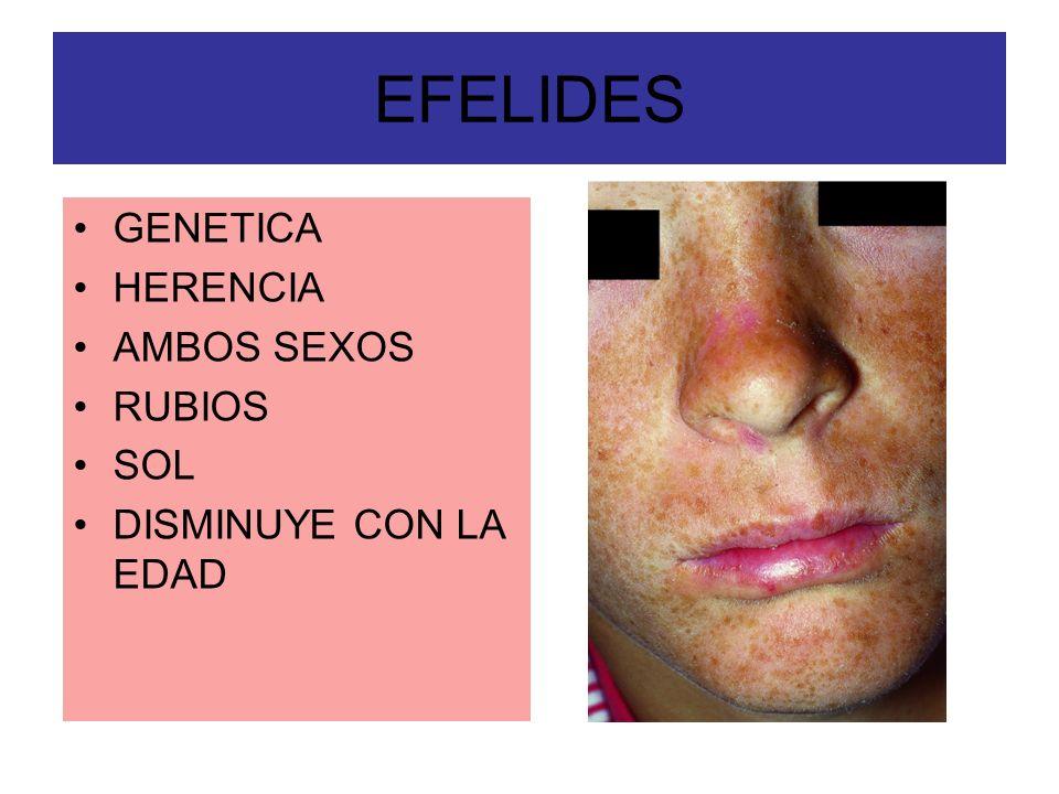 EFELIDES GENETICA HERENCIA AMBOS SEXOS RUBIOS SOL