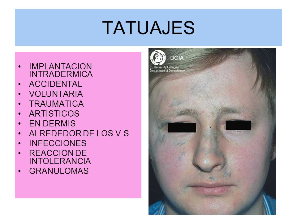 TATUAJES IMPLANTACION INTRADERMICA ACCIDENTAL VOLUNTARIA TRAUMATICA