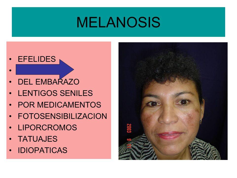MELANOSIS EFELIDES CLOASMA DEL EMBARAZO LENTIGOS SENILES