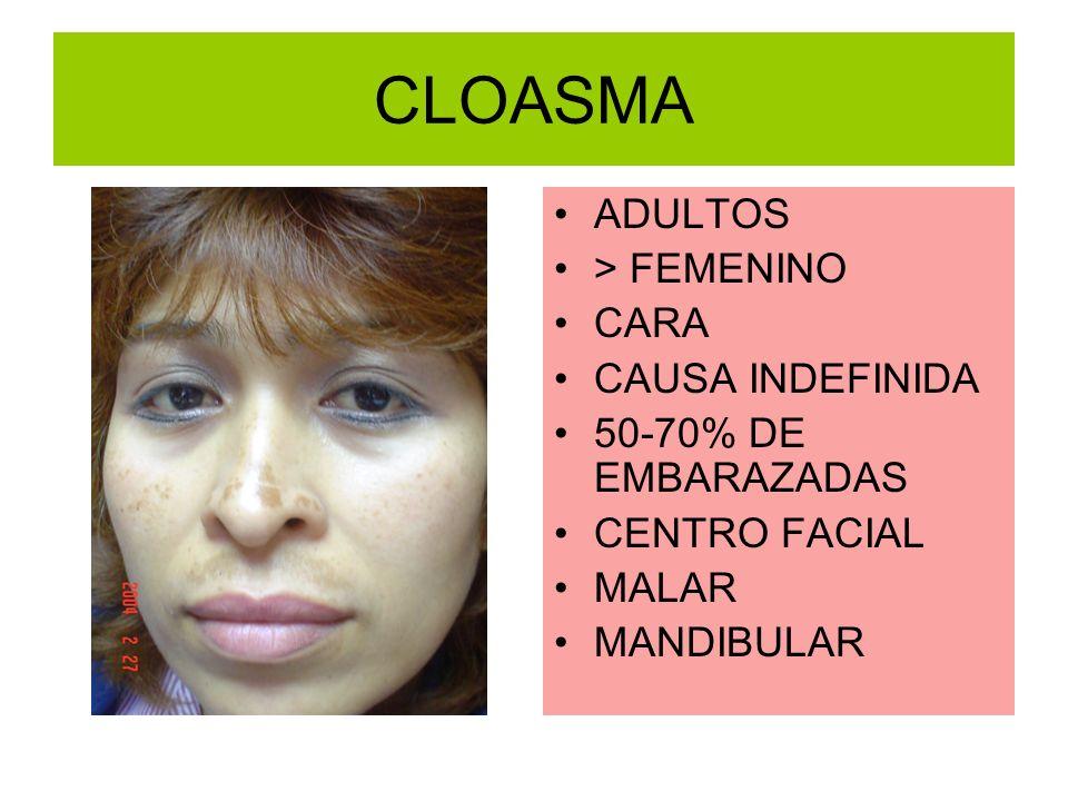 CLOASMA ADULTOS > FEMENINO CARA CAUSA INDEFINIDA