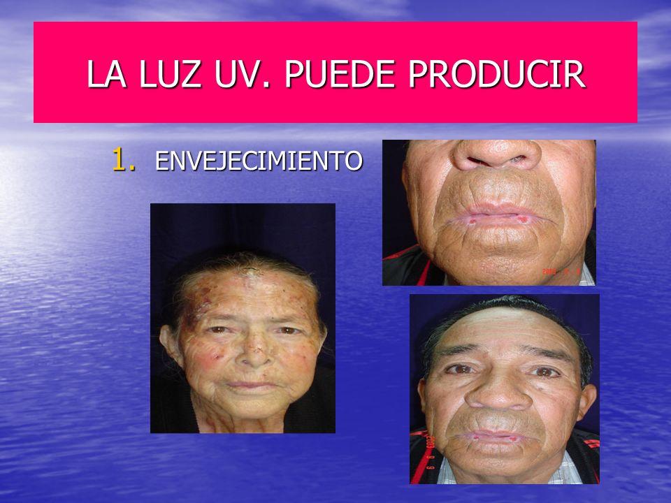 LA LUZ UV. PUEDE PRODUCIR