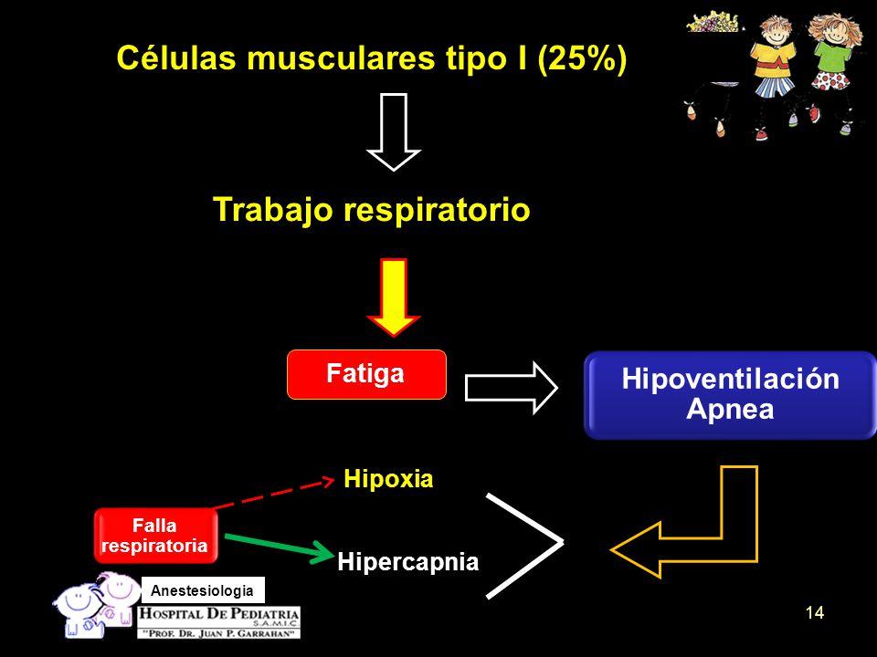 Hipoventilación Apnea