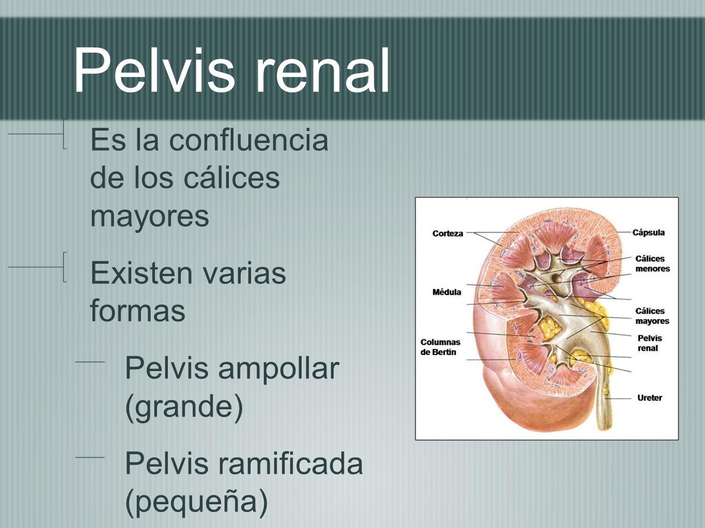 Pelvis renal Es la confluencia de los cálices mayores
