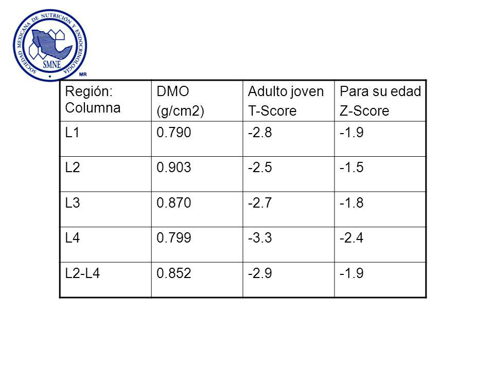 Región: Columna DMO. (g/cm2) Adulto joven. T-Score. Para su edad. Z-Score. L1. 0.790. -2.8.