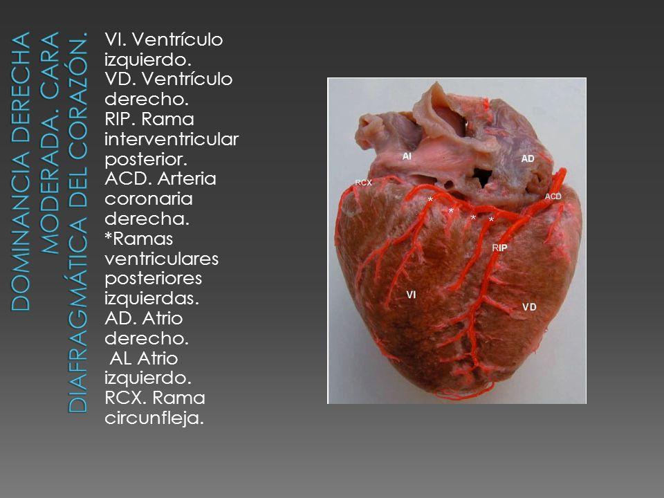 Dominancia derecha moderada. Cara diafragmática del corazón.