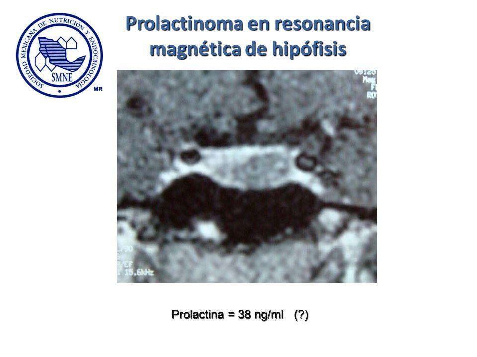 Prolactinoma en resonancia magnética de hipófisis
