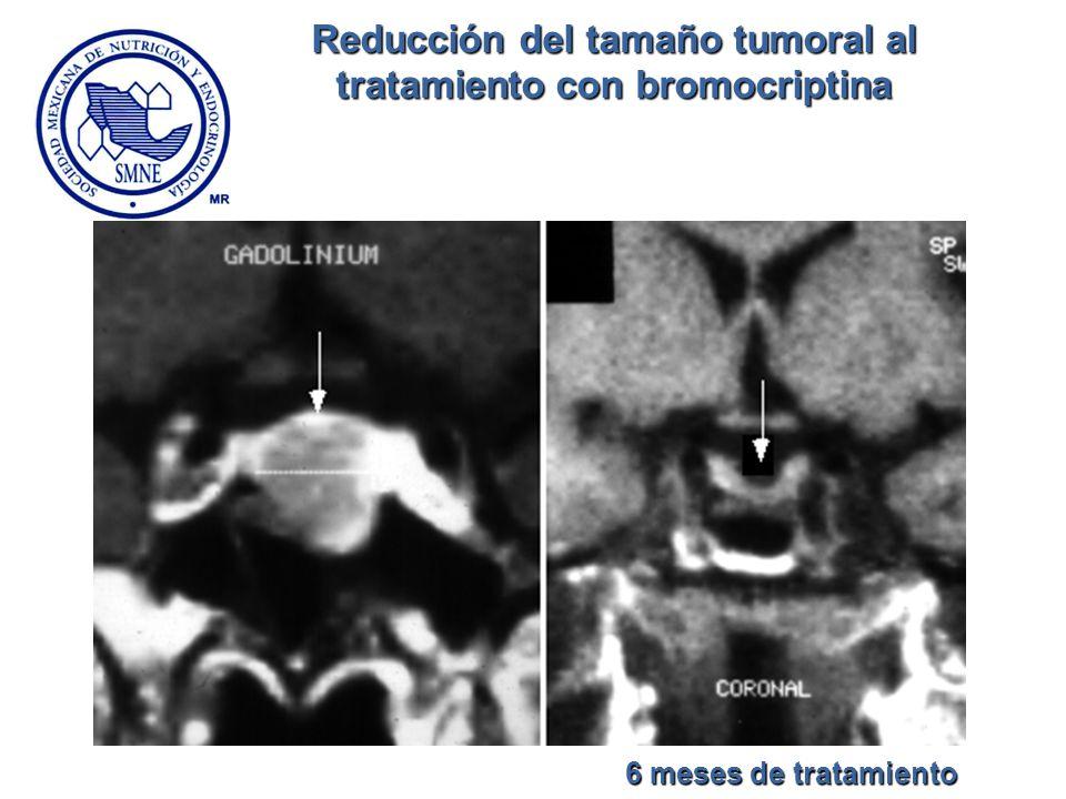 Reducción del tamaño tumoral al tratamiento con bromocriptina