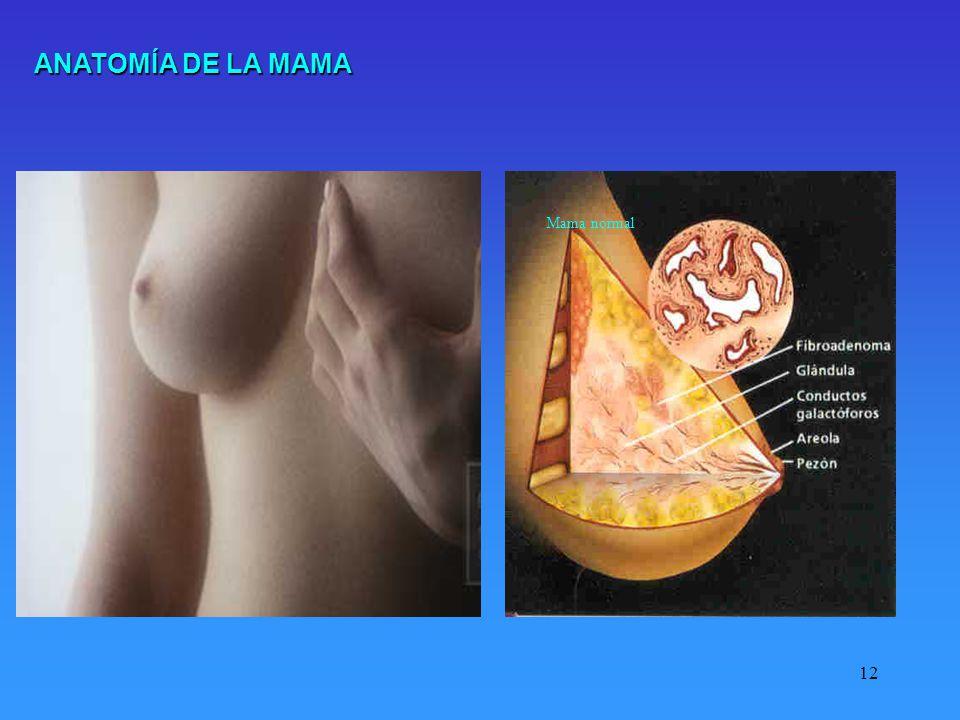 ANATOMÍA DE LA MAMA Mama normal