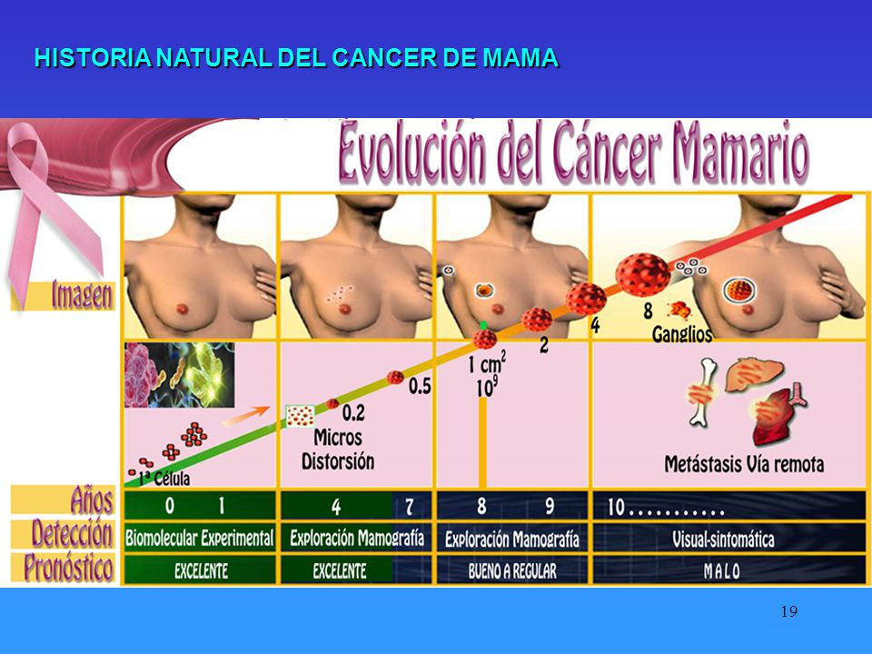 HISTORIA NATURAL DEL CANCER DE MAMA