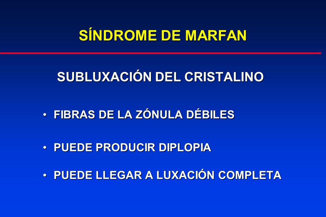 SÍNDROME DE MARFAN SUBLUXACIÓN DEL CRISTALINO