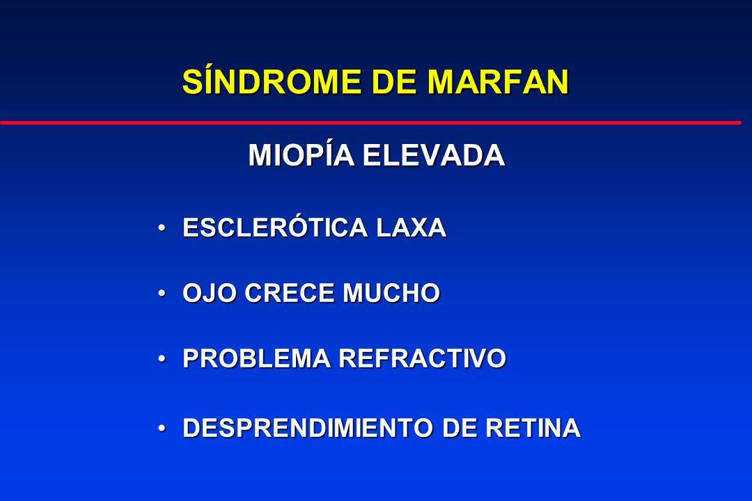 SÍNDROME DE MARFAN MIOPÍA ELEVADA ESCLERÓTICA LAXA OJO CRECE MUCHO