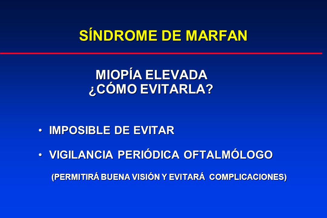 SÍNDROME DE MARFAN MIOPÍA ELEVADA ¿CÓMO EVITARLA IMPOSIBLE DE EVITAR
