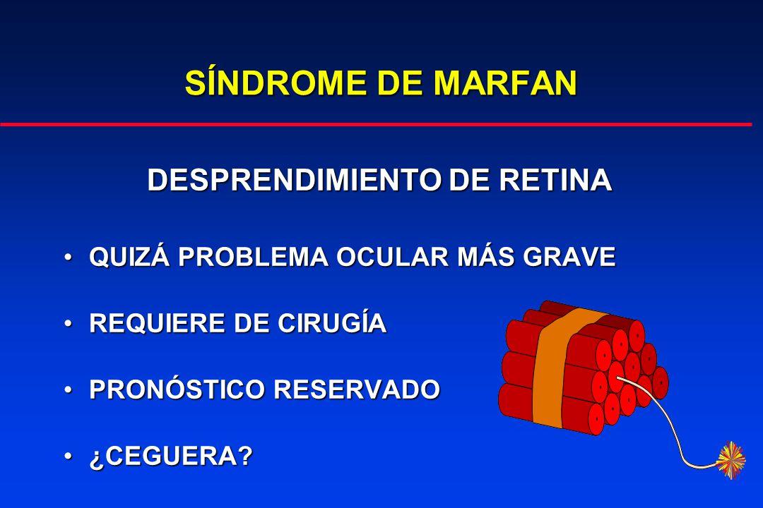 SÍNDROME DE MARFAN DESPRENDIMIENTO DE RETINA