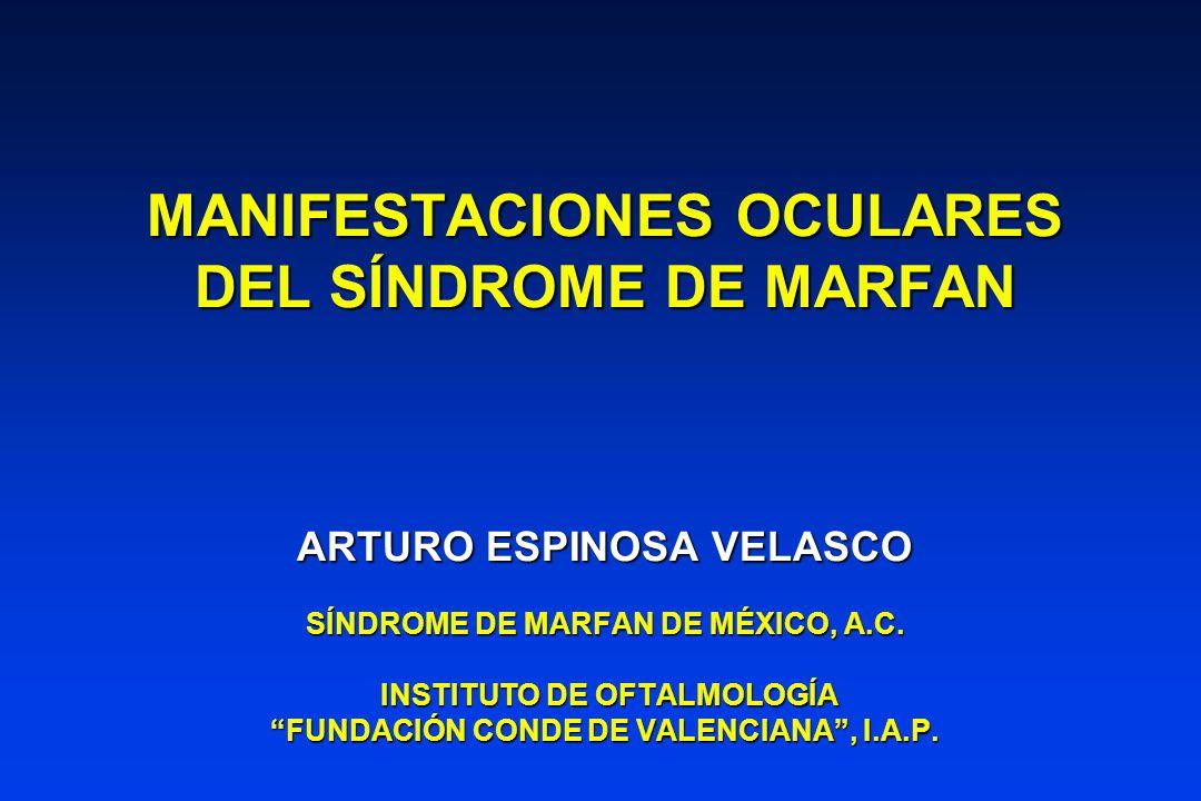 MANIFESTACIONES OCULARES DEL SÍNDROME DE MARFAN ARTURO ESPINOSA VELASCO SÍNDROME DE MARFAN DE MÉXICO, A.C.