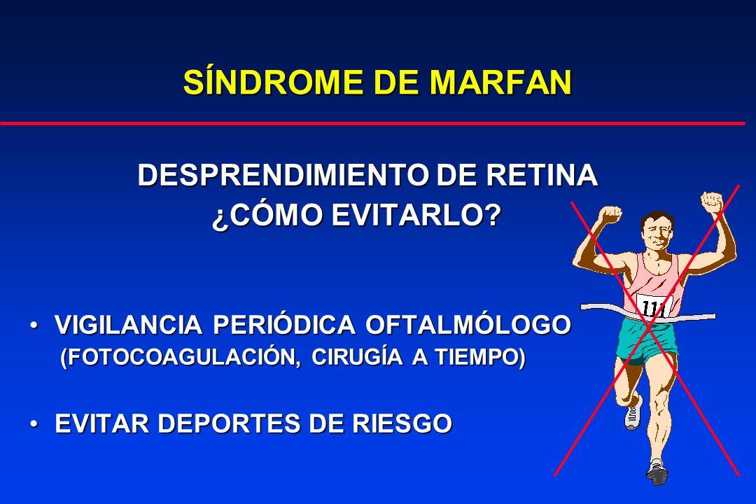 SÍNDROME DE MARFAN DESPRENDIMIENTO DE RETINA ¿CÓMO EVITARLO