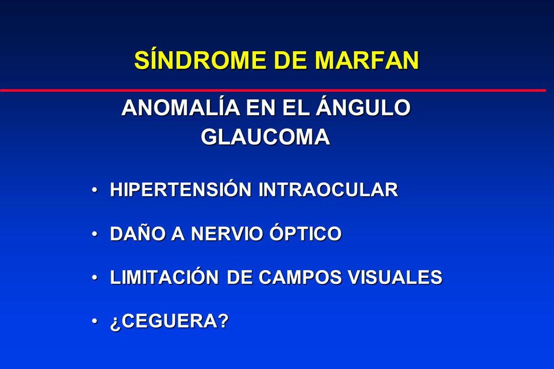 SÍNDROME DE MARFAN ANOMALÍA EN EL ÁNGULO GLAUCOMA