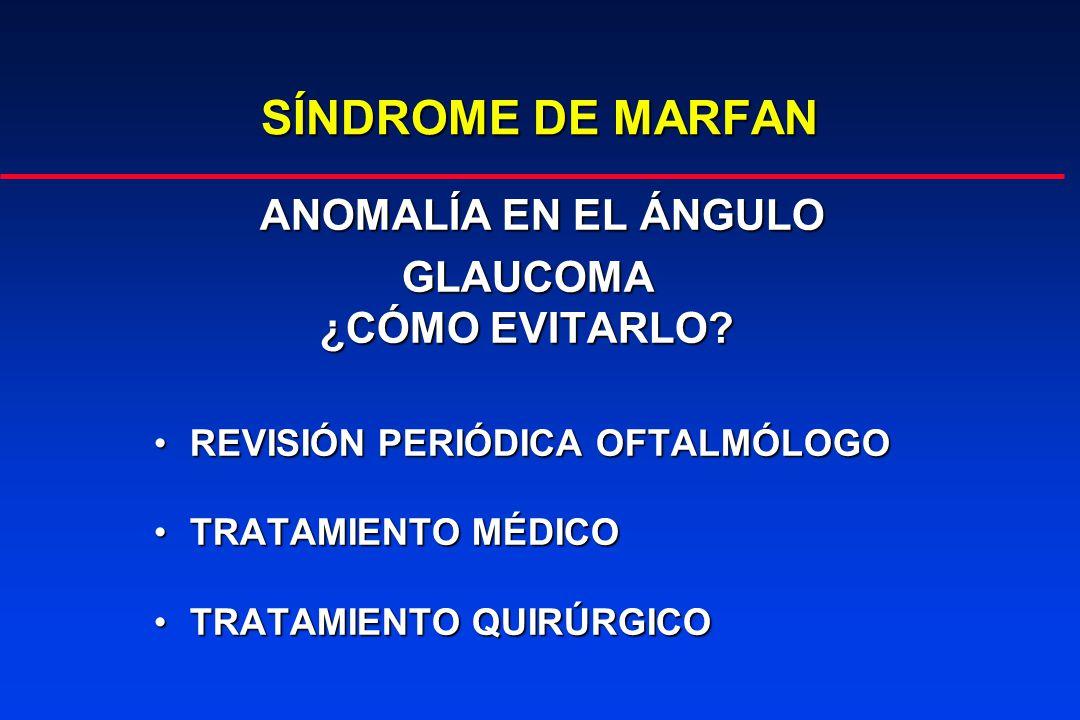 SÍNDROME DE MARFAN ANOMALÍA EN EL ÁNGULO GLAUCOMA ¿CÓMO EVITARLO