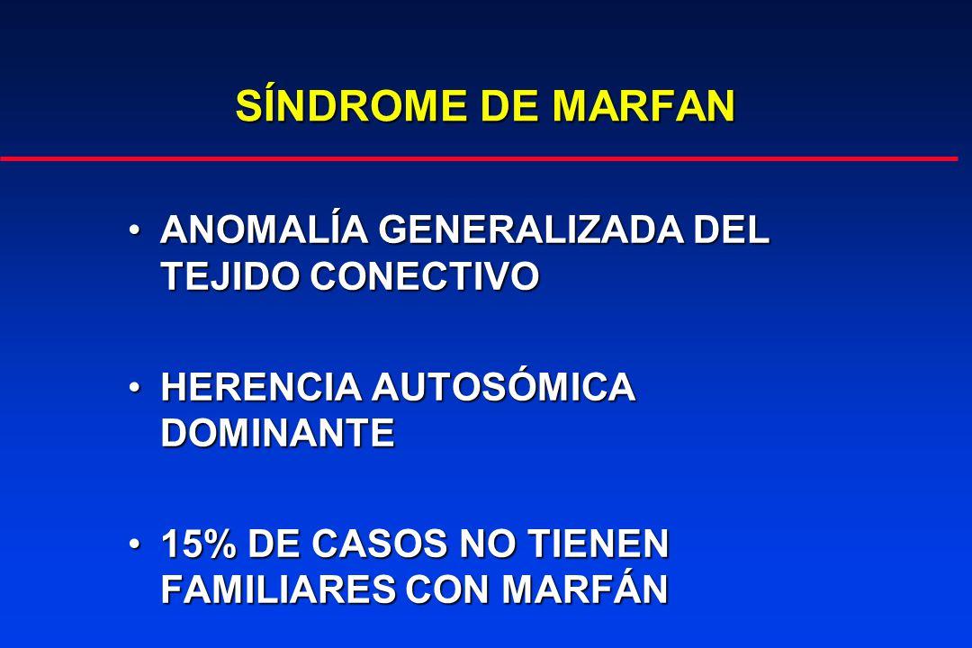 SÍNDROME DE MARFAN ANOMALÍA GENERALIZADA DEL TEJIDO CONECTIVO