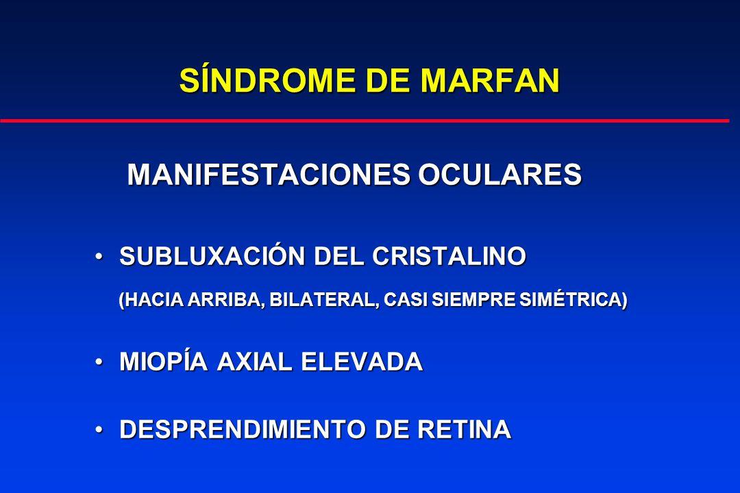 SÍNDROME DE MARFAN MANIFESTACIONES OCULARES