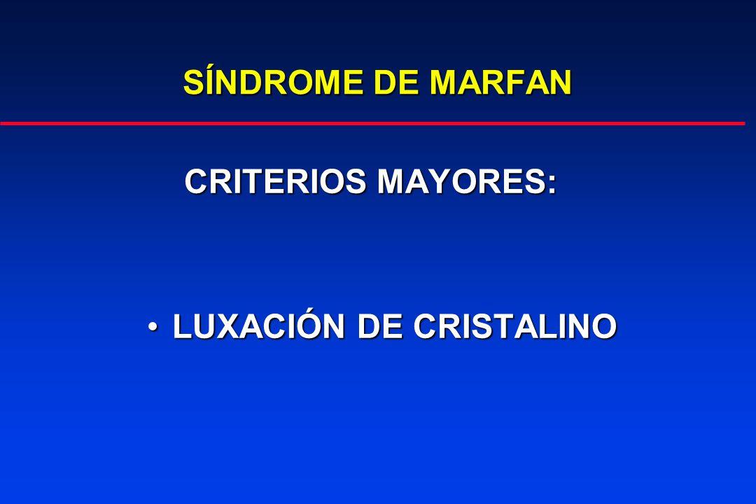 SÍNDROME DE MARFAN CRITERIOS MAYORES: LUXACIÓN DE CRISTALINO