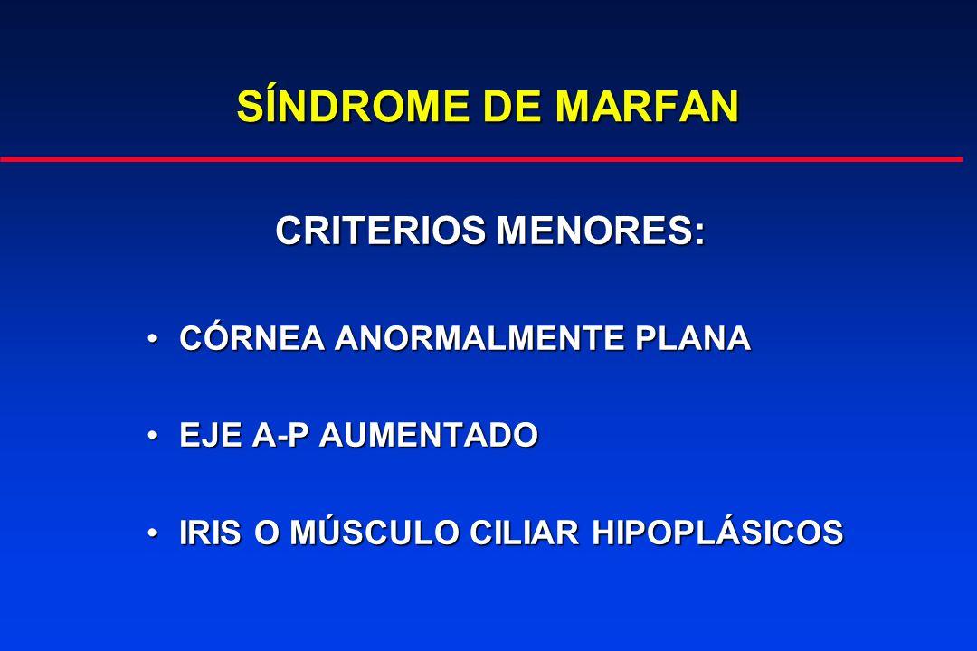 SÍNDROME DE MARFAN CRITERIOS MENORES: CÓRNEA ANORMALMENTE PLANA