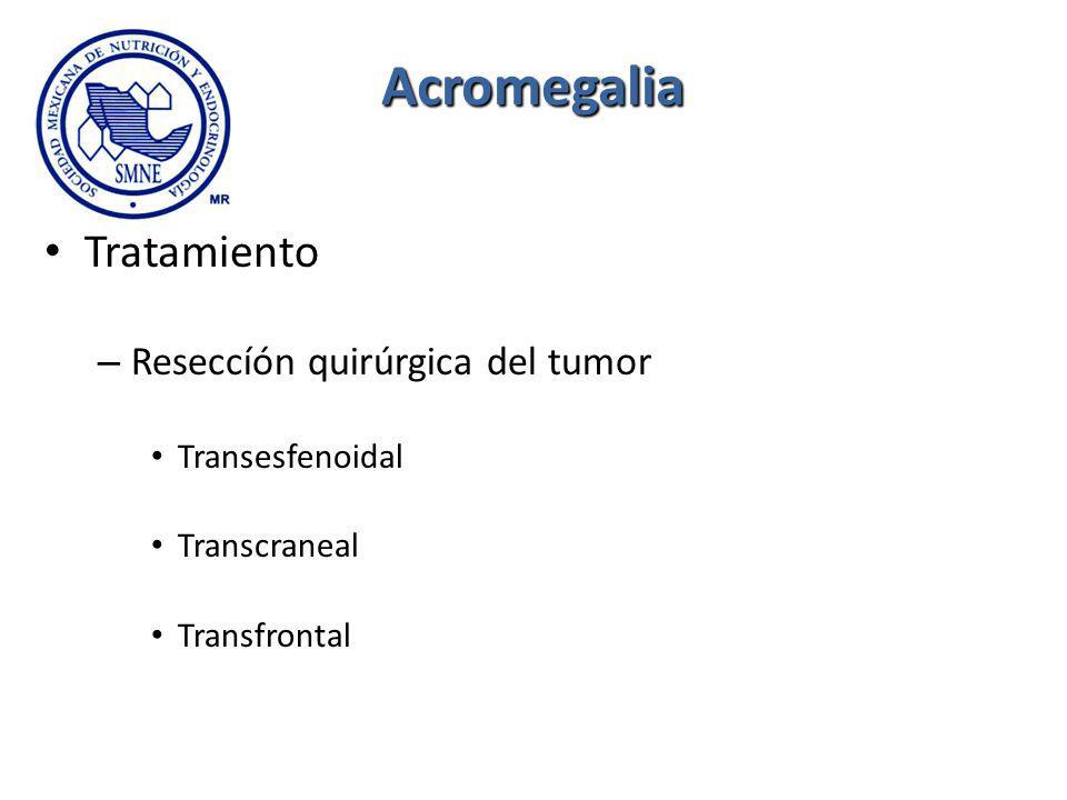 Acromegalia Tratamiento Reseccíón quirúrgica del tumor Transesfenoidal