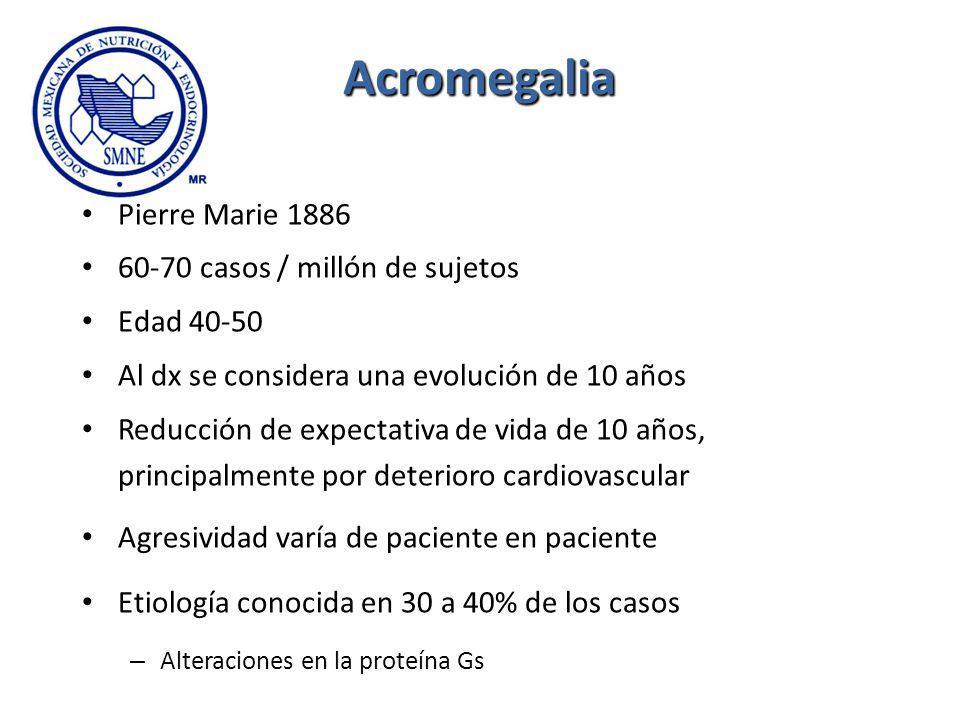 Acromegalia Pierre Marie 1886 60-70 casos / millón de sujetos