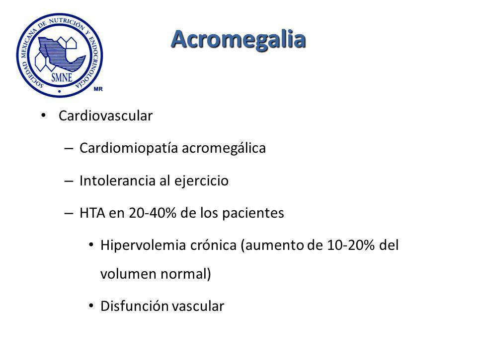 Acromegalia Cardiovascular Cardiomiopatía acromegálica
