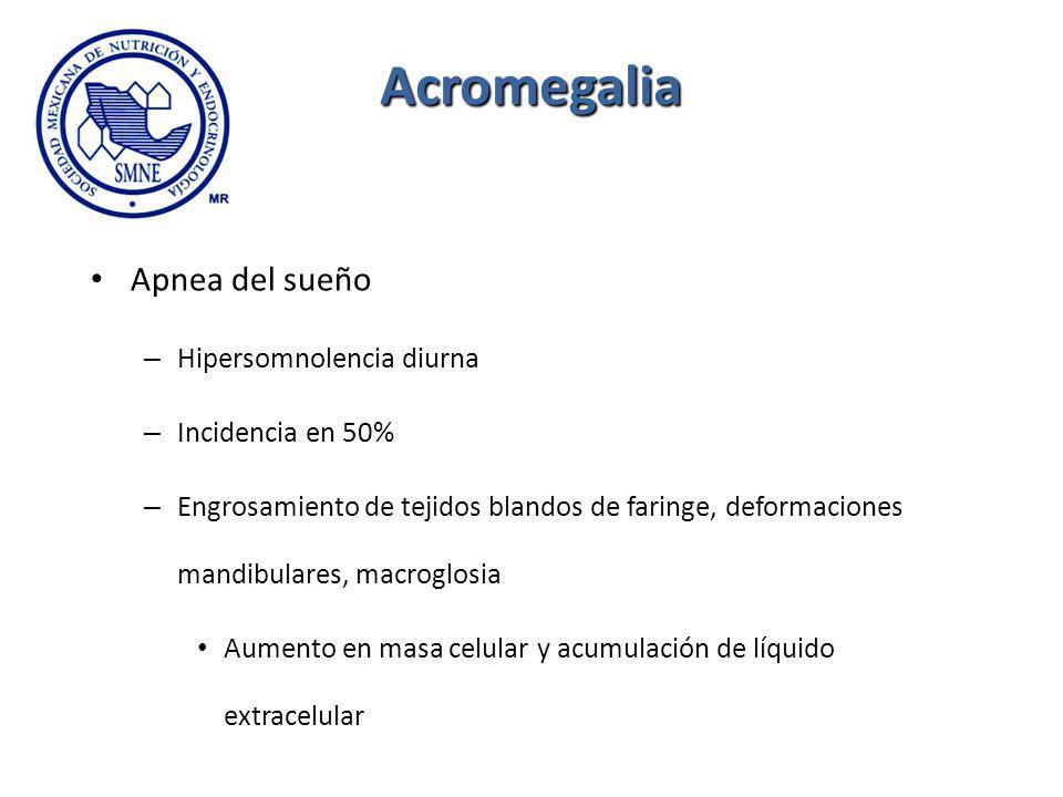 Acromegalia Apnea del sueño Hipersomnolencia diurna Incidencia en 50%