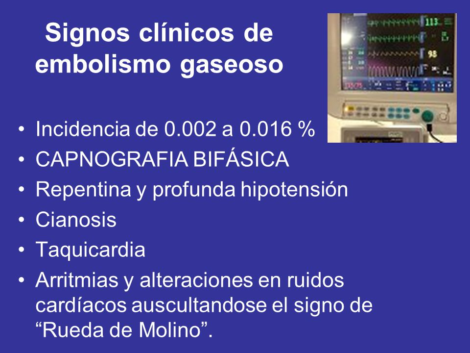 Signos clínicos de embolismo gaseoso