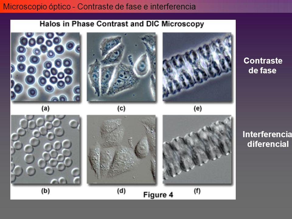 Microscopio óptico - Contraste de fase e interferencia